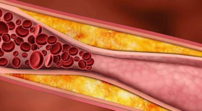 kolesterol ile ilgili görsel sonucu